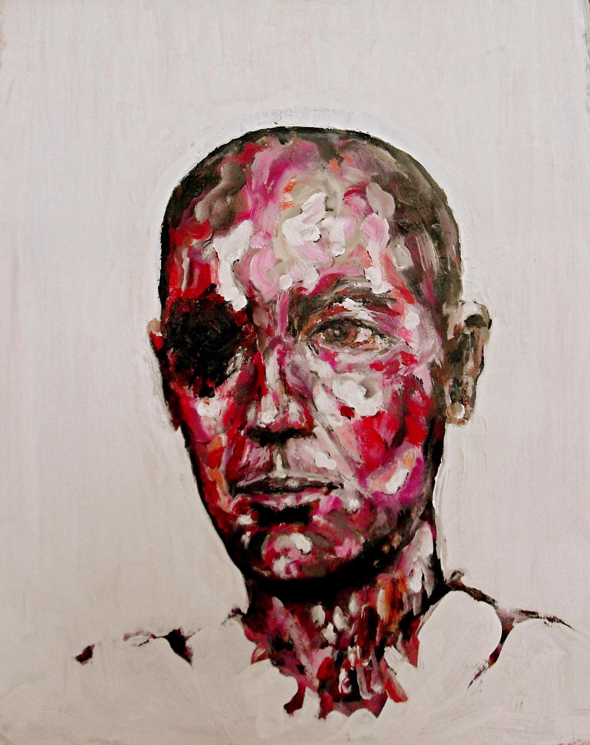Sans titre et sans oeil. Acrylique sur papier / Acrylic on paper. 65 x 60 cm, par Stanmac 2016. Seconde version d'un portrait de borgne.
